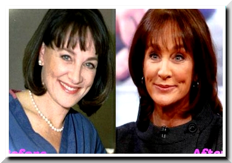 The Rumors on Nancy Sniderman Plastic Surgery – A Failure to Withstand Aging Problem?