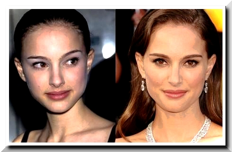 The Scandals regarding Natalie Portman Plastic Surgery