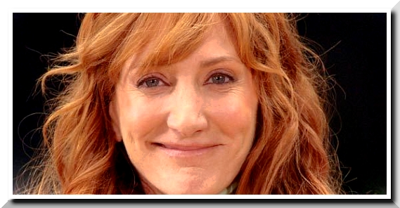 Patti Scialfa Plastic Surgery Scandals